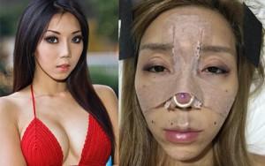 DJ sexy nhất Malaysia tung ảnh phẫu thuật đau đớn