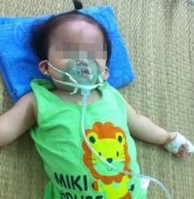 Sức khỏe đời sống - Nhận biết sớm các dấu hiệu viêm phổi ở trẻ nhỏ