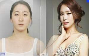 Làm đẹp - Bất ngờ với ca chuyển giới ngoạn mục xứ Hàn