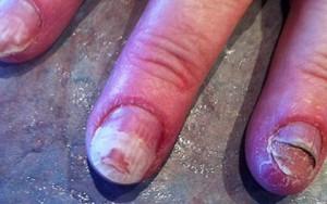 Tư vấn làm đẹp - Nguy cơ hỏng móng tay do sơn sửa tại tiệm