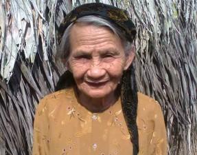 Sức khỏe đời sống - Cụ bà 82 tuổi bị ong đốt hơn 100 nốt vẫn sống