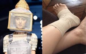 """Thời trang - Người mẫu """"hậu đậu"""" ngã bong gân vì lồng nuôi ong"""