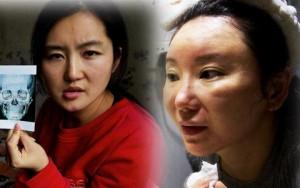 Thẩm mỹ viện - 3 cô gái Trung Quốc nhan sắc tàn tạ hậu dao kéo