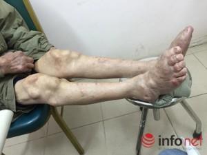 Sức khỏe đời sống - Suy thận vì điều trị gout ở phòng khám đông y Trung Quốc