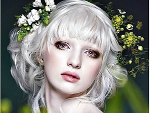 Cô gái bạch tạng trở thành người mẫu nổi tiếng thế giới