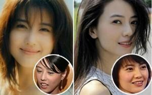 Làm đẹp - Bóc mẽ hàm răng xấu xí của người đẹp Hoa ngữ