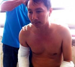 An ninh Xã hội - Cà Mau: Cán bộ tòa án bị chém loạn xạ khi đang nhậu