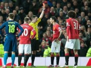Bóng đá - MU gục ngã FA cup: Van Gaal nên chuẩn bị đơn từ chức