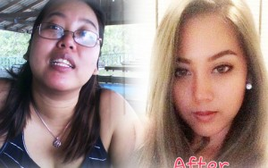 Tư vấn làm đẹp - Cô gái béo Thái Lan tình duyên khởi sắc nhờ thẩm mỹ