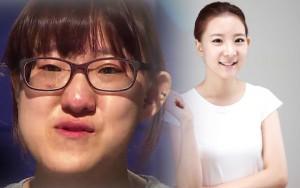 Thẩm mỹ viện - Thiếu nữ Hàn Quốc xinh đẹp hơn nhờ căn chỉnh mặt lệch