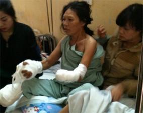 Bạn trẻ - Cuộc sống - Bất hạnh của người đàn bà trụ cột bị cắt bỏ tay chân