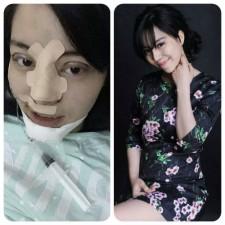 8X + 9X - 9X phẫu thuật thẩm mỹ toàn mặt vì sợ chồng 'chán'