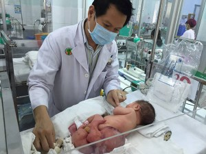 Tách thành công khối u hình thai nhi trên cơ thể bé sơ sinh