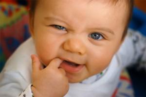 Sức khỏe đời sống - Cảnh báo thuốc đau răng, táo bón có thể gây tử vong