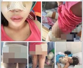 Bạn trẻ - Cuộc sống - Cô gái Việt đăng ảnh phẫu thuật toàn thân gây sốc
