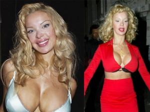 Làm đẹp - Cựu người mẫu gặp họa vì lạm dụng bơm mông, nâng ngực