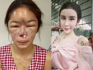 Làm đẹp - 5 mỹ nam, mỹ nữ bị hỏng mặt vì ham phẫu thuật thẩm mỹ
