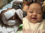 Sức khỏe đời sống - Xót thương bé gái 8 tháng tuổi bị hỏng hai mắt vì ung thư