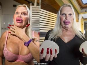Làm đẹp - Người chuyển giới gây hoảng sợ vì vẻ ngoài biến dạng