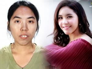 Làm đẹp - Cô gái Thái Lan răng hô 'lột xác' bất ngờ nhờ thẩm mỹ