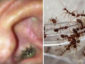 Phi thường - kỳ quặc - Hoảng sợ với đàn kiến sống thành bầy trong tai bé gái