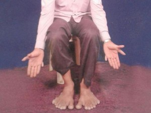 Phi thường - kỳ quặc - Người đàn ông có tới 28 ngón tay và chân