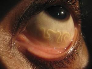 Phi thường - kỳ quặc - 5 'quái vật' kí sinh kinh dị trên cơ thể người