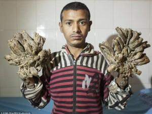 Phi thường - kỳ quặc - Người đàn ông biến thành cây vì bệnh lạ