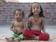 Sức khỏe đời sống - Ấn Độ: Hai chị em ruột cùng bị lão hóa