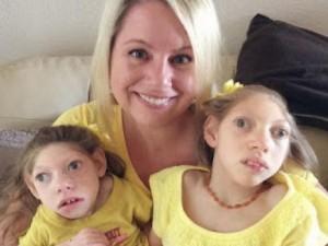 Điểm nóng - Cảm động tình yêu của người mẹ Mỹ với 2 con teo não