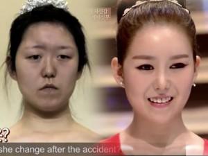 Làm đẹp - Cô gái biến dạng sau tai nạn 'lột xác' nhờ dao kéo
