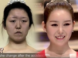 Cô gái biến dạng sau tai nạn 'lột xác' nhờ dao kéo