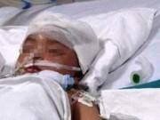 Sức khỏe đời sống - Bé gái 3 tuổi bị vợt cầu lông đâm xuyên não