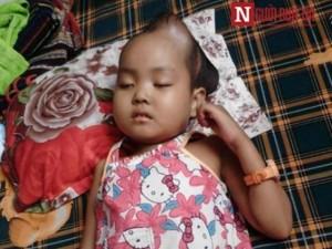 Bạn trẻ - Cuộc sống - Xót xa bé gái co giật liên hồi vì mắc chứng u não