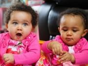 Thế giới - Kỳ lạ cặp song sinh cùng trứng có màu da đối lập