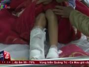 Tin tức trong ngày - Người vợ bị chồng bạo hành đứt gân cổ chân, xương gót