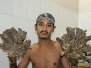"""Thế giới - Người đàn ông có """"bàn tay của quỷ"""" được phẫu thuật"""