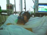 Sức khỏe đời sống - Lần đầu tiên cứu bệnh nhân mắc bệnh hiếm gặp, máu bị cô đặc