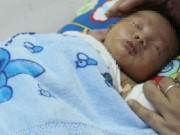 Sức khỏe đời sống - Bé sơ sinh mắc dị tật hiếm gặp ở ruột