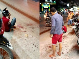 Cảnh giác - Hai thanh niên bị truy sát, chém đứt lìa bàn tay