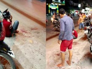 Hai thanh niên bị truy sát, chém đứt lìa bàn tay