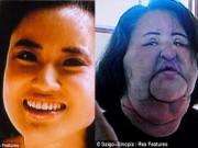 Sức khỏe đời sống - Người đẹp hóa dị nhân vì phẫu thuật, tiêm dầu ăn vào da