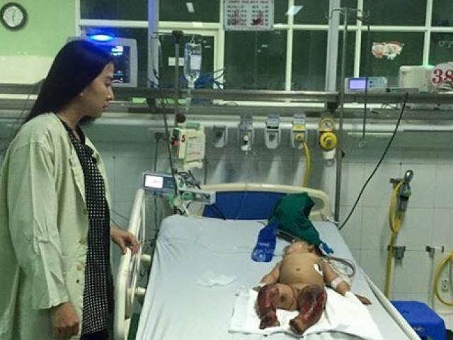 Xót xa bé 8 tháng tuổi bị hoại tử chân vì bất cẩn