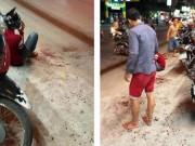 An ninh Xã hội - Chưa xác định ai chém lìa tay thiếu niên ở Gò Vấp