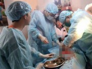 Sức khỏe đời sống - Bác sĩ kể lại phút mổ cấp cứu bệnh nhân tại nhà riêng