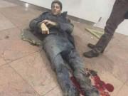 Thể thao - SAO bóng rổ bị thương nặng ở vụ đánh bom hãi hùng