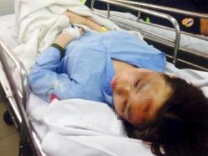 Nữ sinh viên bị tạt axit ở Sài Gòn có nguy cơ mù mắt