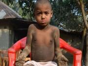 """Sức khỏe đời sống - Cậu bé """"hóa đá"""" vì căn bệnh hiếm gặp"""