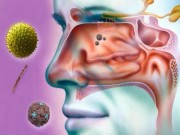 4 cách hiệu quả giúp làm dịu viêm xoang