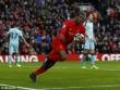 Chi tiết Liverpool - Burnley: Thót tim cuối trận (KT)